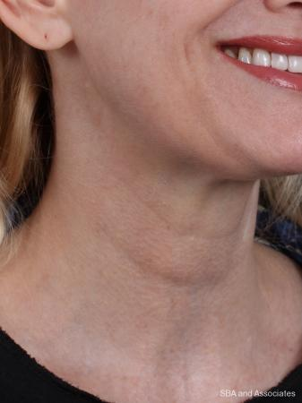 Botox: Patient 7 - After Image