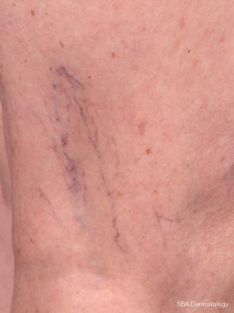 Sclerotherapy: Patient 1 - Before Image