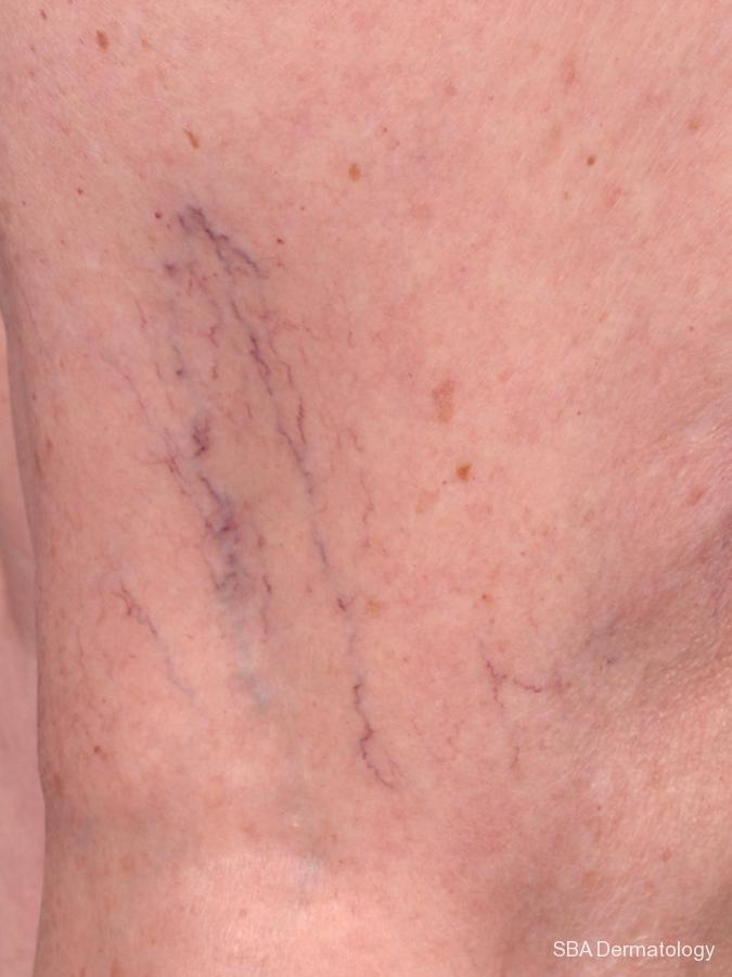 Sclerotherapy: Patient 1 - Before and After Image