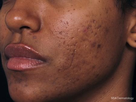 Ultherapy: Patient 3 - Before Image
