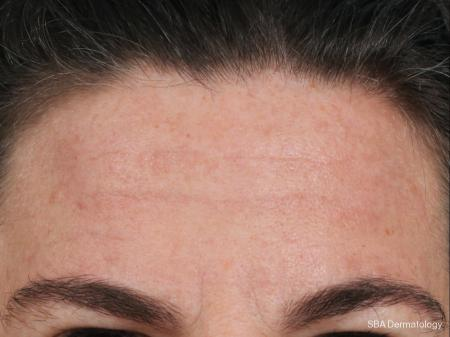 Botox: Patient 3 - After Image