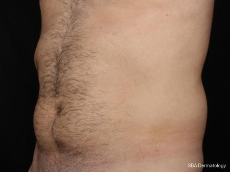 Coolsculpting: Patient 2 - Before Image