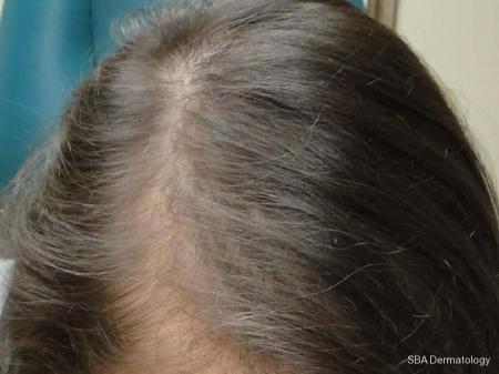 PRP For Hair Loss: Patient 2 - After Image
