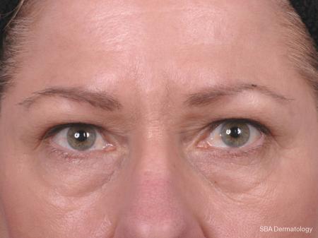 HA Filler: Patient 3 - Before Image