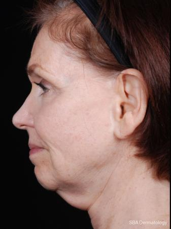 Ultherapy: Patient 2 - Before Image