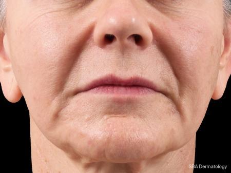 Botox: Patient 6 - Before Image