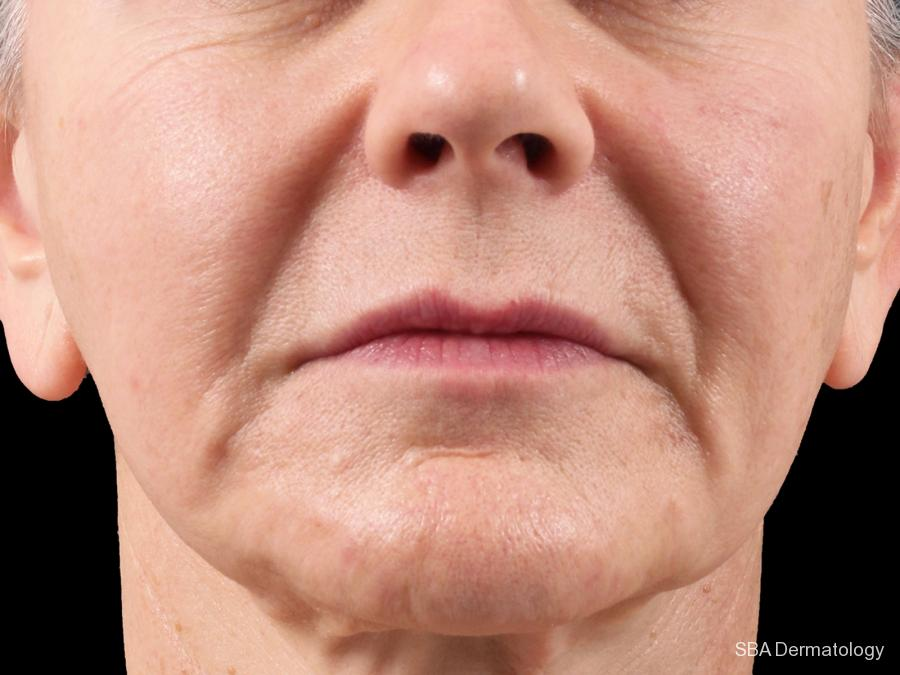 Botox: Patient 5 - Before and After Image