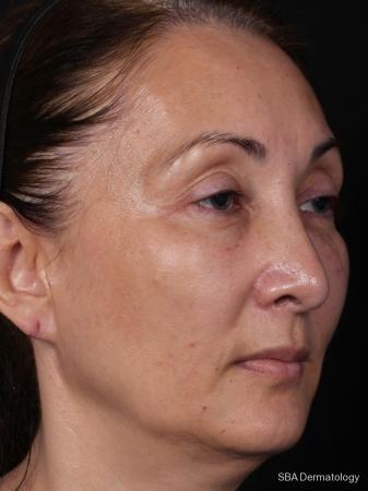 HA Filler: Patient 4 - After Image
