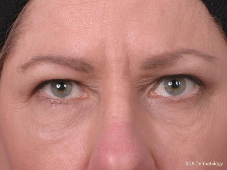 HA Filler: Patient 3 - After Image
