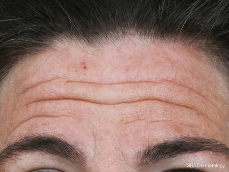 Botox: Patient 4 - Before Image