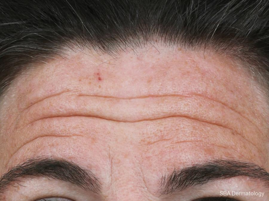 Botox: Patient 3 - Before and After Image