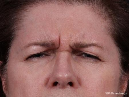 Botox: Patient 4 - Before Image