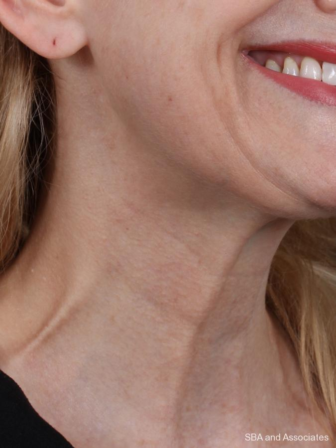 Botox: Patient 6 - Before and After Image