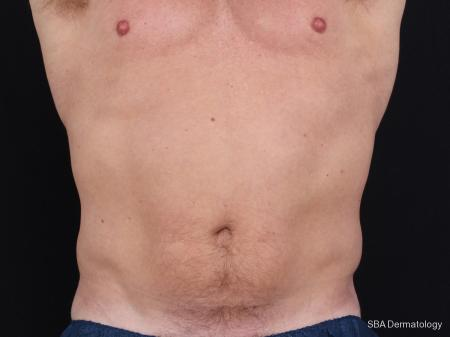 Coolsculpting: Patient 3 - Before Image