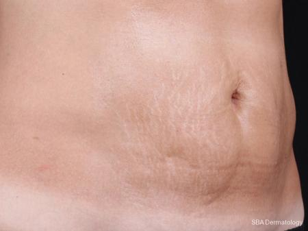 Microneedling With PRP: Patient 2 - Before Image