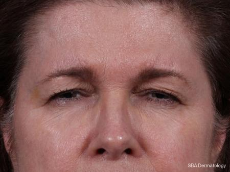Botox: Patient 4 - After Image