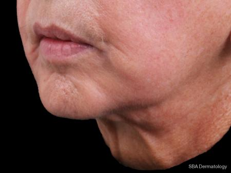 Ultherapy: Patient 1 - Before Image