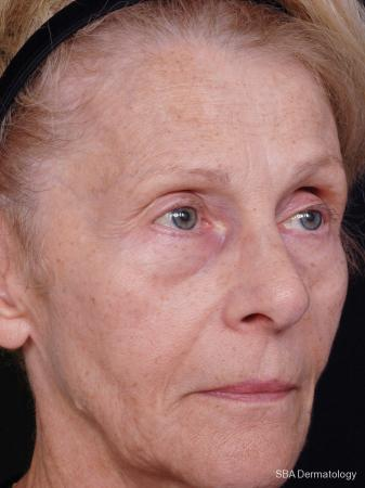Sculptra-Face: Patient 2 - Before Image