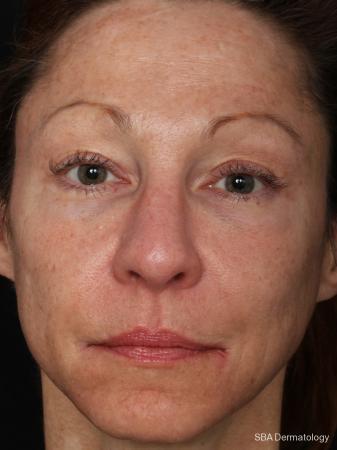 HA Filler: Patient 17 - After Image