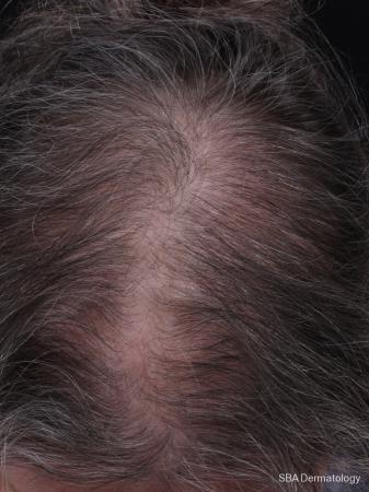 PRP For Hair Loss: Patient 3 - Before Image