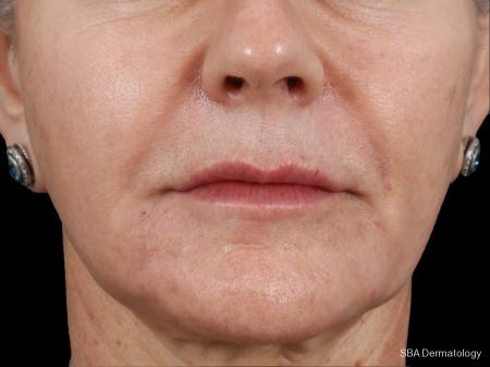Botox: Patient 5 - After Image