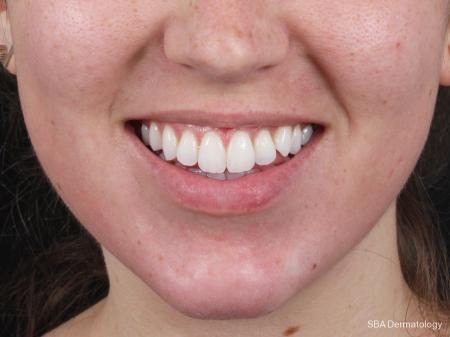 HA Filler: Patient 9 - After Image