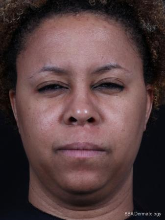 Botox: Patient 2 - After Image