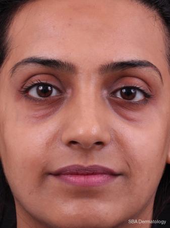HA Filler: Patient 10 - Before Image