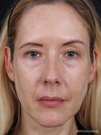 HA Filler: Patient 1 - Before Image
