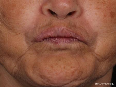 Botox: Patient 1 - After Image
