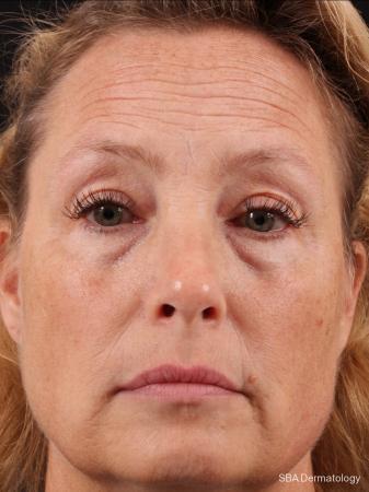 HA Filler: Patient 16 - Before Image