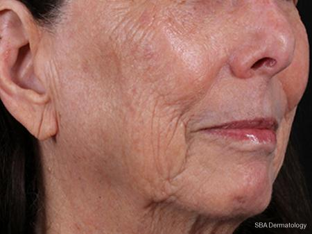 IPL-Photofacial: Patient 1 - After Image