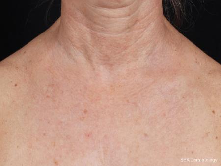 IPL-Photofacial: Patient 4 - After Image