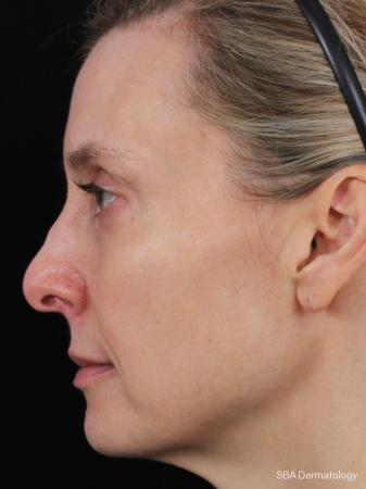Sculptra-Face: Patient 1 - Before Image