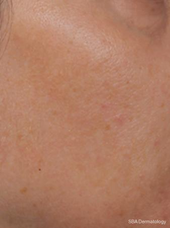 Microneedling With PRP: Patient 1 - After Image