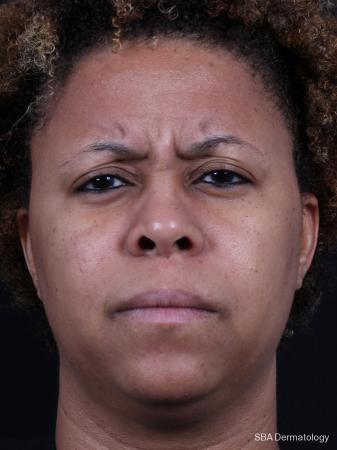 Botox: Patient 3 - Before Image