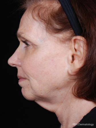 Ultherapy: Patient 2 - After Image