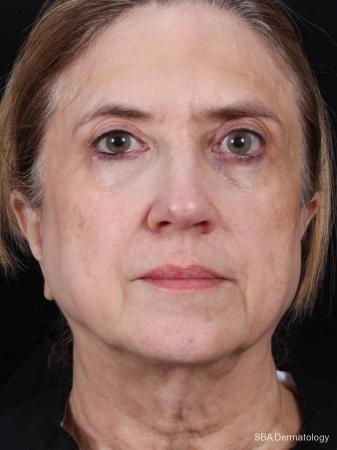 Photofractional: Patient 2 - Before