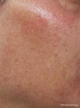 Microneedling With PRP: Patient 1 - Before Image