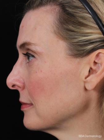 Sculptra-Face: Patient 1 - After Image