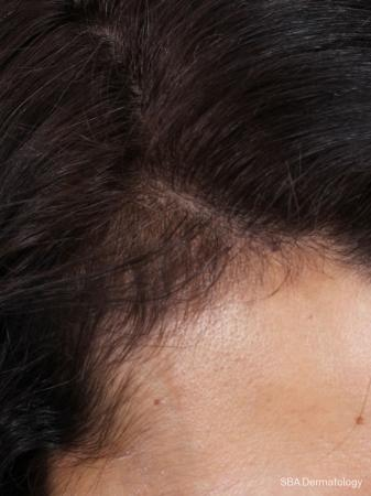 PRP For Hair Loss: Patient 1 - Before Image