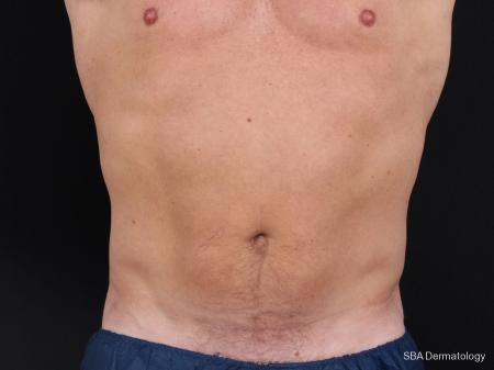 Coolsculpting: Patient 3 - After Image