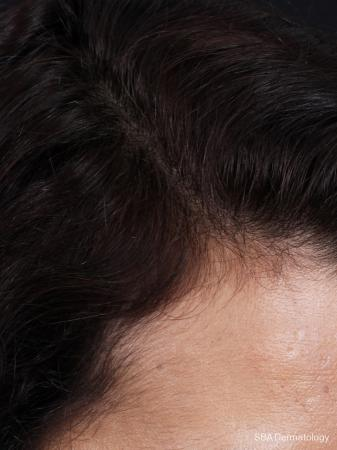 PRP For Hair Loss: Patient 1 - After Image