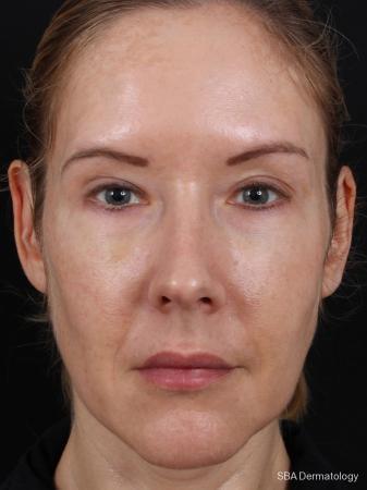 HA Filler: Patient 1 - After Image