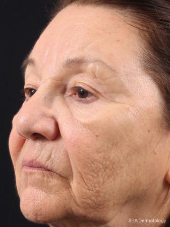 HA Filler: Patient 13 - Before Image