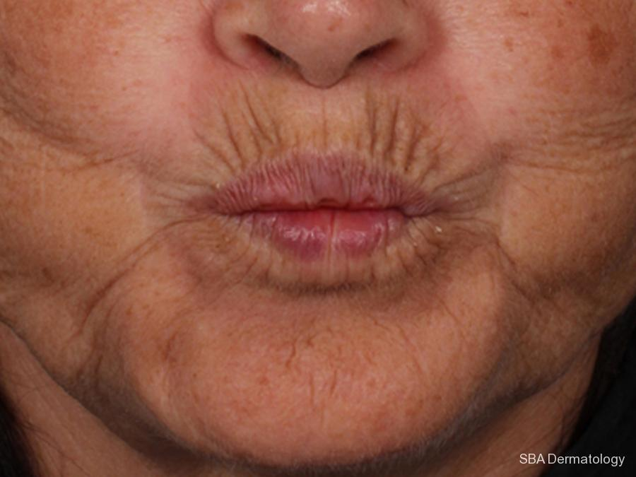 Botox: Patient 1 - Before and After Image