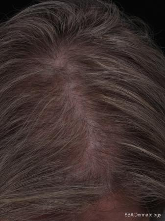PRP For Hair Loss: Patient 3 - After Image