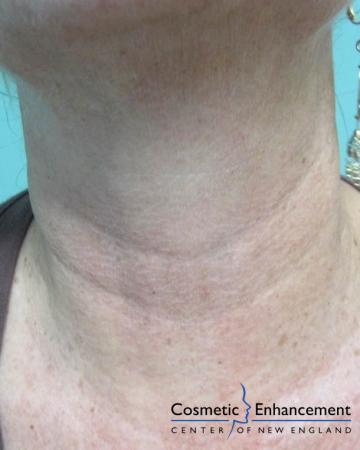 Vampire Facelift: Patient 5 - After Image 2