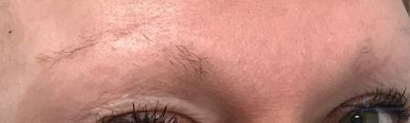 Microblading: Patient 3 - Before Image