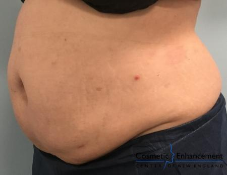 CoolSculpting®: Patient 9 - After Image